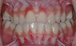 Before Picture of Adult Orthodontic Patient Hull