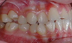 Before Picture of Orthodontic Care for Teens Hull