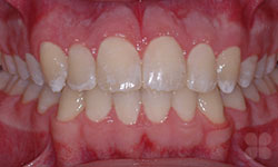 After Picture of Orthodontic Care in Alymer