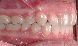 After Picture of Correction of Overbite - Outaouais Orthodontics