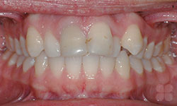 Before Picture of Early Orthodontic Treatment Gatineau