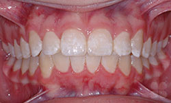 After Picture of Lingual Braces Treatment Gatineau