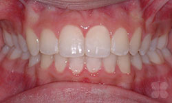 After Picture of Orthodontic Treatment Gatineau
