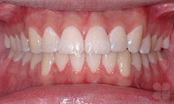 After Picture of Dental Makeover in Hull
