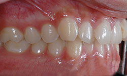 Before Picture of Orthodontic Patient Hull