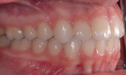 After Picture of Braces with Tooth Extractions