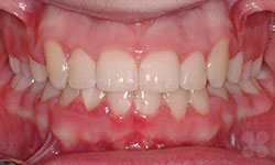 After Picture of Braces Gatineau