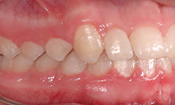 After Picture of Hidden Braces Treatment Gatineau