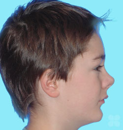 Before Picture of Teen Braces Treatment  Gatineau