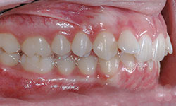 Before Picture of Orthodontic Care in Alymer