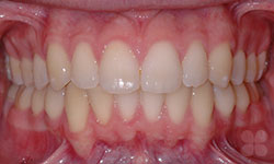 Before Picture of Hidden Braces Treatment Gatineau