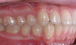 After Picture of Child Orthodontic Treatment Alymer