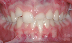 Alymer Braces Before & After Photos