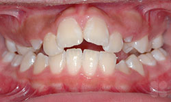 Before Picture of Teen Crowded Teeth Treatment Gatineau