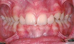 Before Picture of Adolescent Dental Treatment