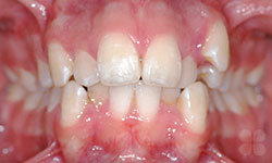 Before Picture of Dental Braces Treatment Alymer