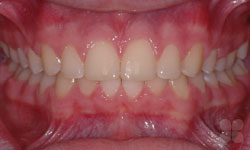 After Picture of Cosmetic Dental Braces Gatineau