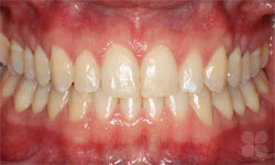 After Picture of Dental Space Correction Hull