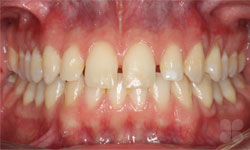 Hull Braces Before & After Photos