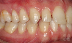 Before Picture of Dental Space Correction Hull