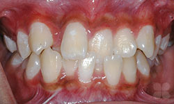 Before Picture of Hull Damon Braces Treatment