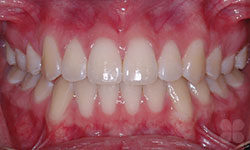 After Picture of Low-Friction Braces Treatment