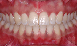 After Picture of Braces Face Shape