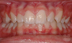 Before Picture of Gatineau Damon Braces Treatment