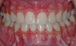 After Picture of In-Ovation® Braces Treatment Hull