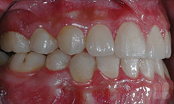 After Picture of Hidden Braces Treatment Hull