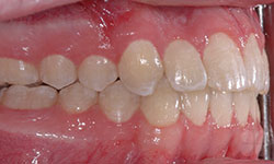 After Picture of Orthodontic Care for Teens Hull