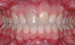 After Picture of Teen Orthodontic Treatment Hull