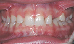 Before Picture of Orthodontic Care for Teens