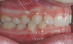 Before Picture of Teeth Crowding Hull