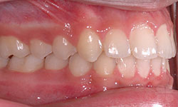 After Picture of Orthodontic Care for Teens