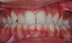 Before Picture of Orthodontic Treatment Gatineau