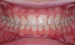 After Picture of Dental Space Correction Gatineau
