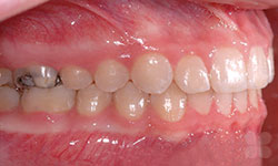 After picture of Dental Transformations in Alymer
