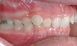 Before Picture of Non-Extraction Orthodontics Treatment