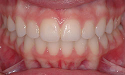 After Picture of Teen Crowded Teeth Treatment Gatineau