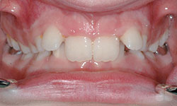Before Picture of cosmetic Dental Braces Hull