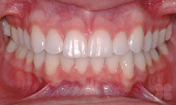 After Picture of Dental Braces Treatment Alymer