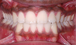 After Picture of Teen Dental Treatment