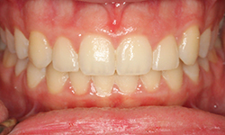 Meguerditchian After teeth1