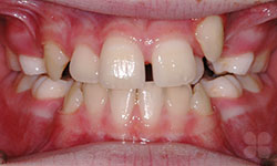 Before Picture of Children Orthodontic Treatment Hull