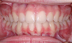 After Picture of Dental Makeover in Gatineau