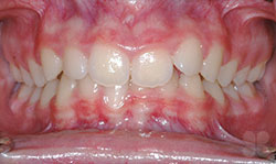 Before Picture of Cosmetic Dentistry