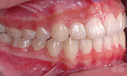 After Picture of Adult Orthodontic Patient Hull
