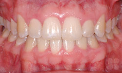 Invisible Braces Treatment Hull