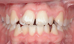 Before Picture of Adult Orthodontic Treatment Alymer
